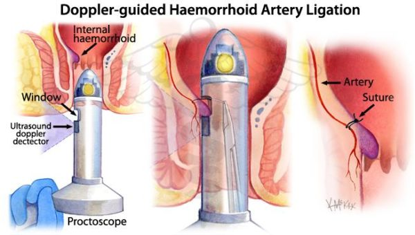 Doppler guided haemorrhoid artery ligation - proctology course