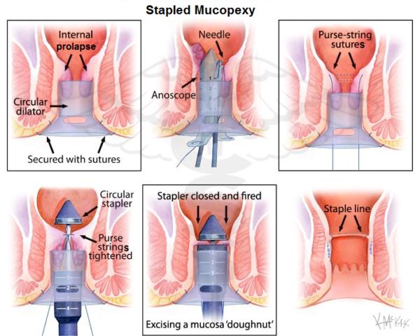 stapled mucopexy - proctology course