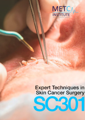 expert techniques in skin cancer surgery