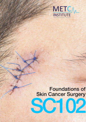 foundations of skin cancer surgery