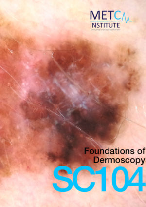 Foundations of dermoscopy