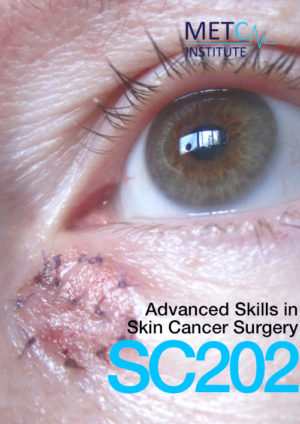 advanced skills in skin cancer surgery