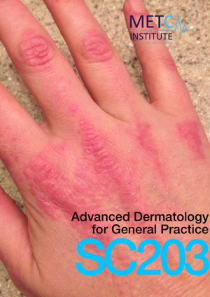 advanced dermatology for general practice
